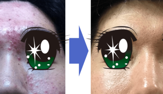 【証拠写真】ニキビの治し方 | ネット情報は嘘ばっか? | 洗顔方法の裏技 | 治らないなら試す価値あり